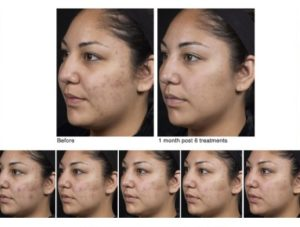Acne and Laser Acne Treatments - Woodland Hills   The Med Spot